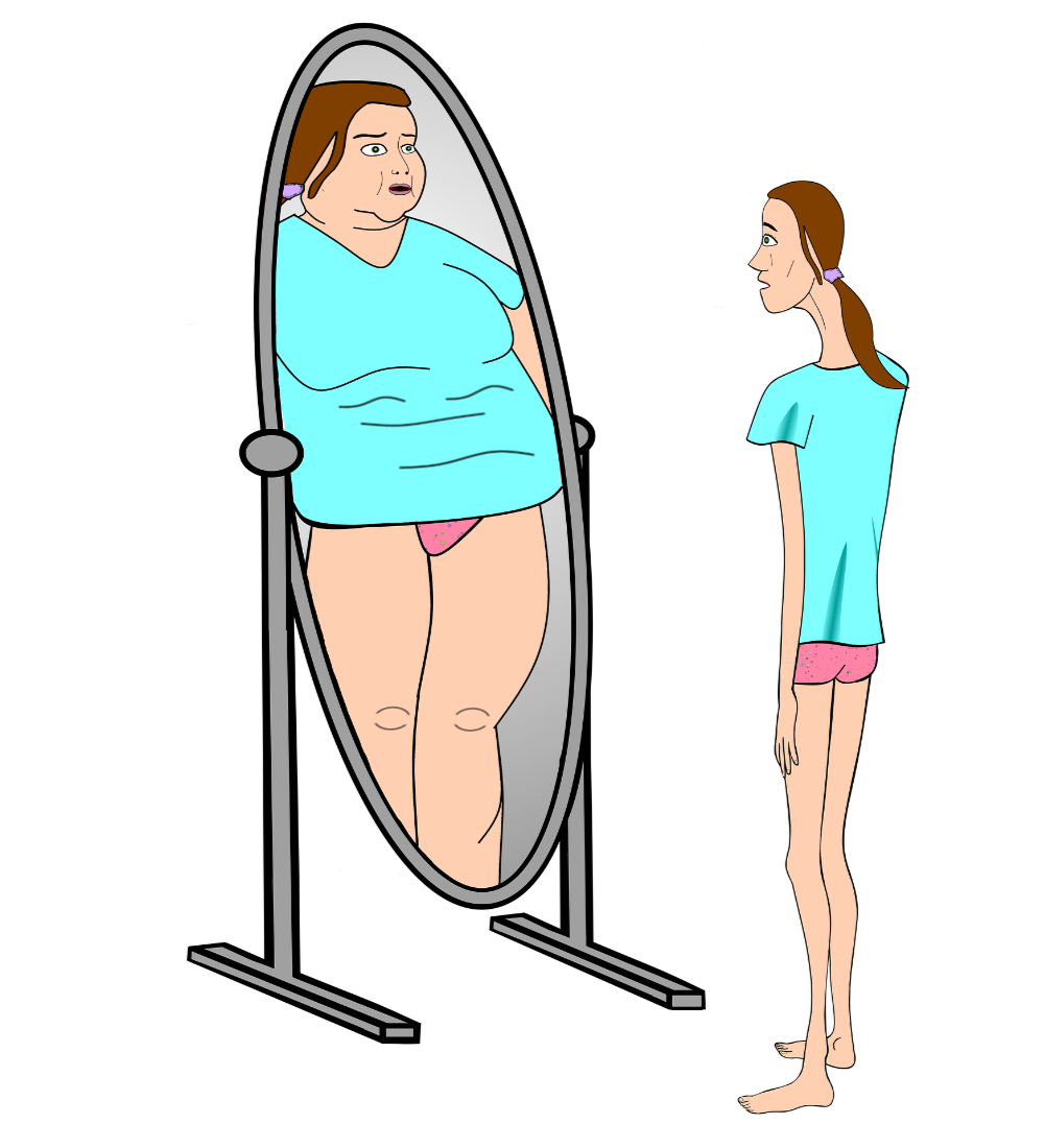 Eating Disorders image